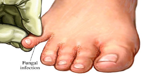 Say Goodbye to Fungal Infections Soak Your Feet In...